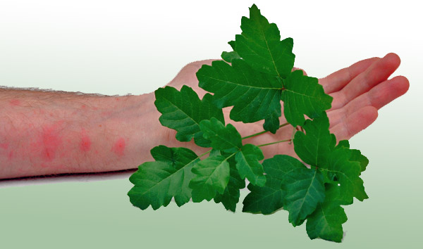 poison-oak-rash-600(1).jpg